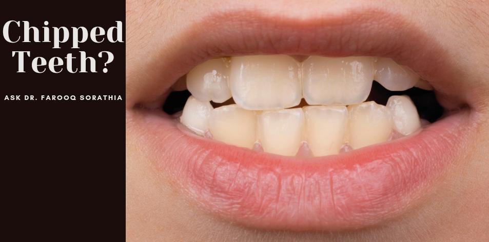 Chipped teeth